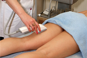 Tratamentos a laser é a nova arma para combater as varizes