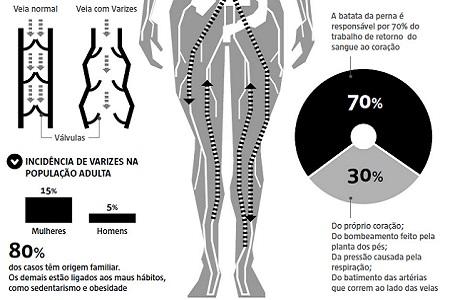 Imagem do artigo Medicina avança no tratamento de varizes